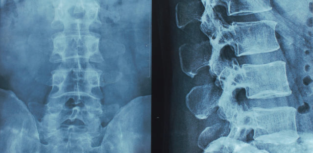 Spinal Cord Injury & Physical Therapy