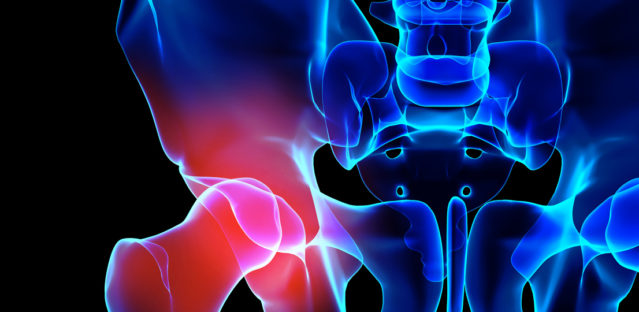 Physical Therapy For Hip Dysplasia